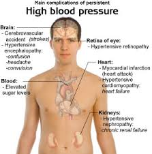 Physical symptom of high blood pressure